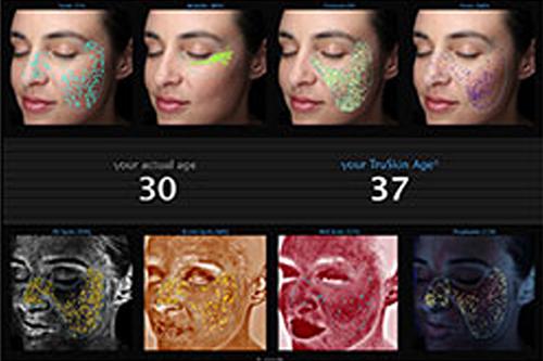 Visia_Skin condition