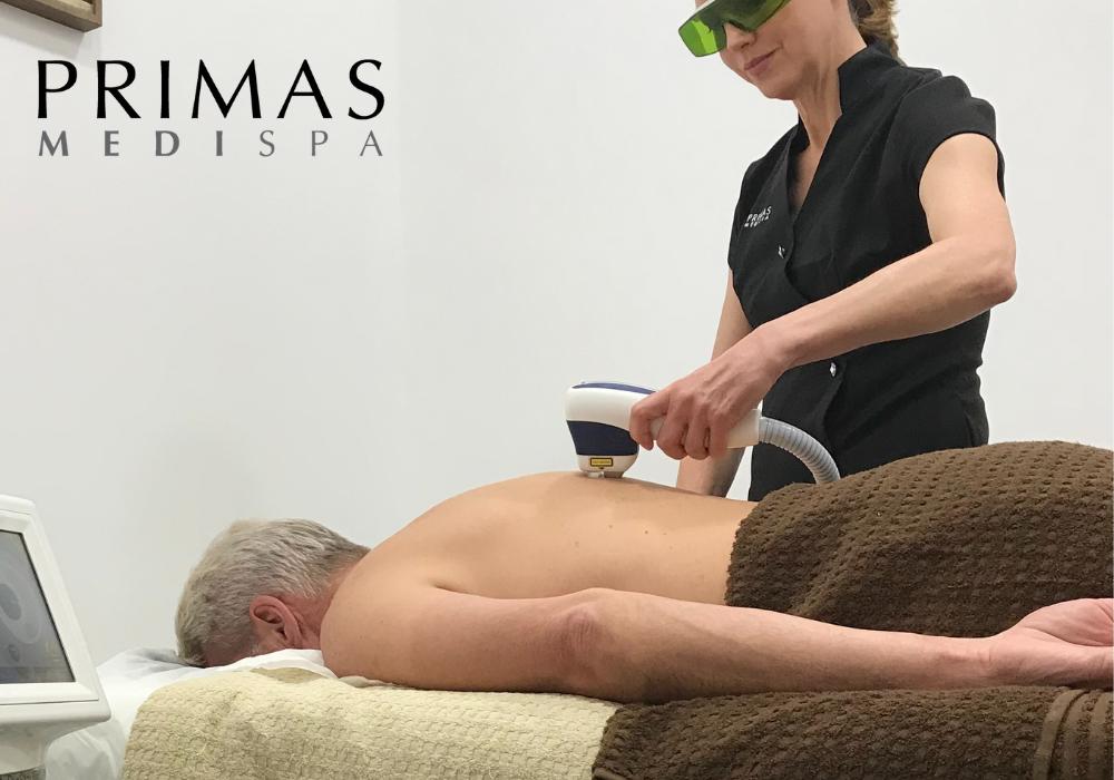 Laser Hair Removal for Men at Primas Medispa